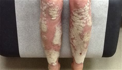 Psoriasis: When the 'usual suspect' therapy works - The